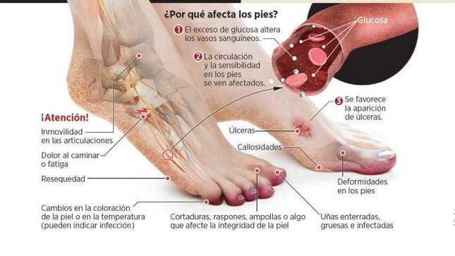 piediabetico1